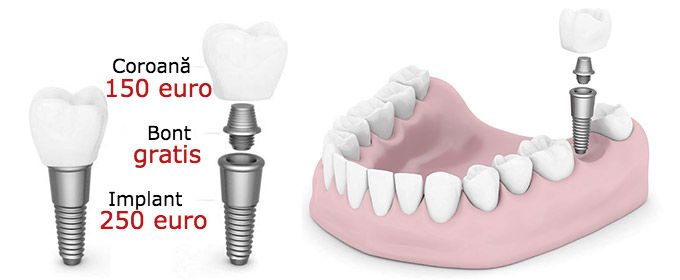 Implant dentar pret 400 euro