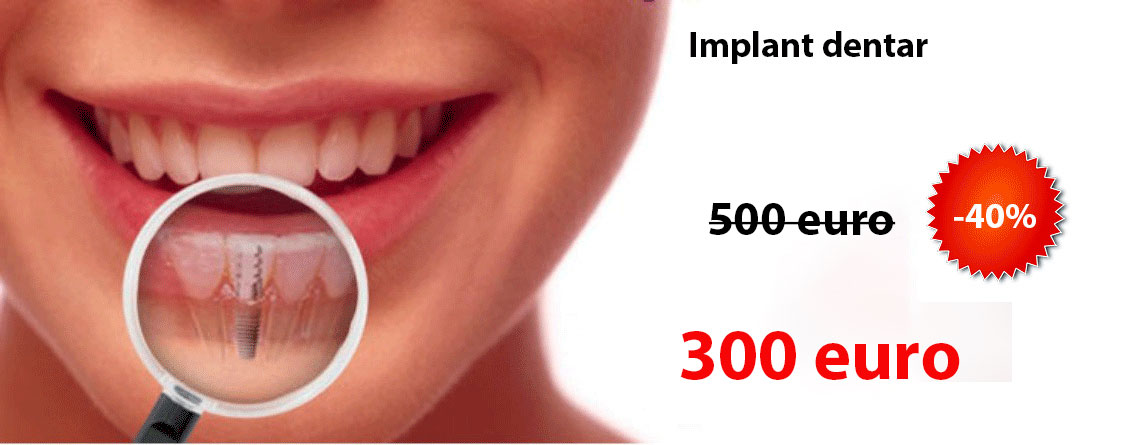 Implant dentar pret 250 euro